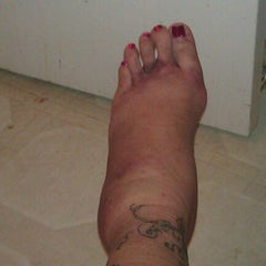 Photo taken at Broken Ankle by Stephanie T. on 10/24/2011
